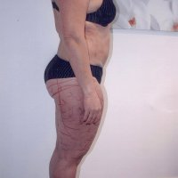 Liposculpture 015