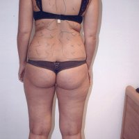Liposculpture 011