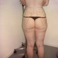 Liposculpture 004