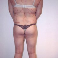 Liposculpture 013