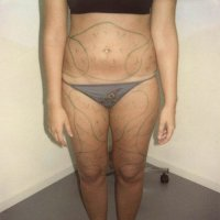 Liposculpture 010